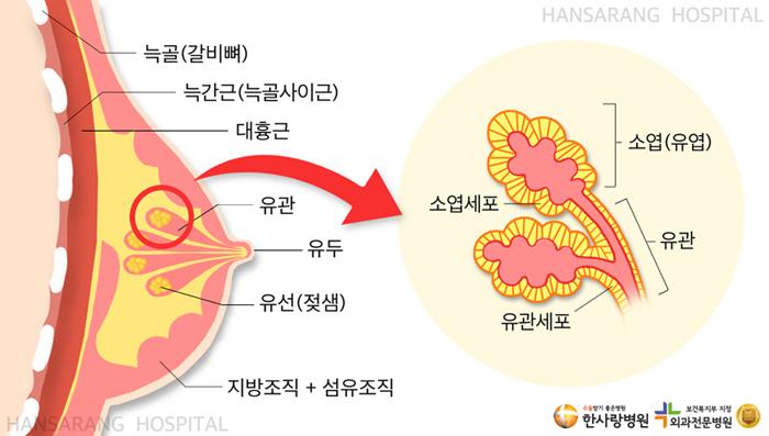 안산한사랑병원 유방질환