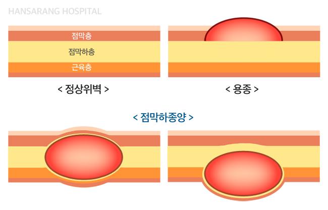위점막하종양