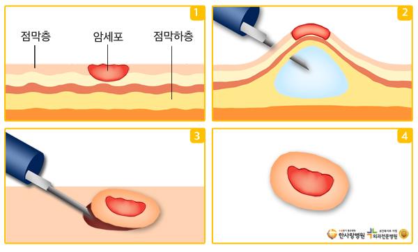 내시경점막하박리술