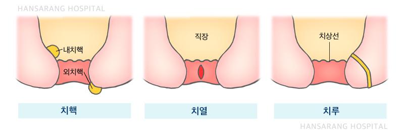 치핵치루치열